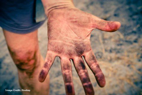 Dirt, Germ, Disease, Health