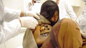 Ancient Peruvian Mummy, Archaeological Discovery
